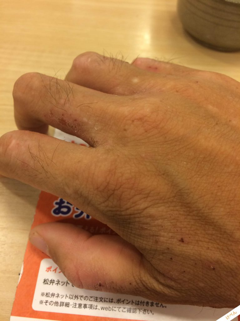 Atopy Hand 01